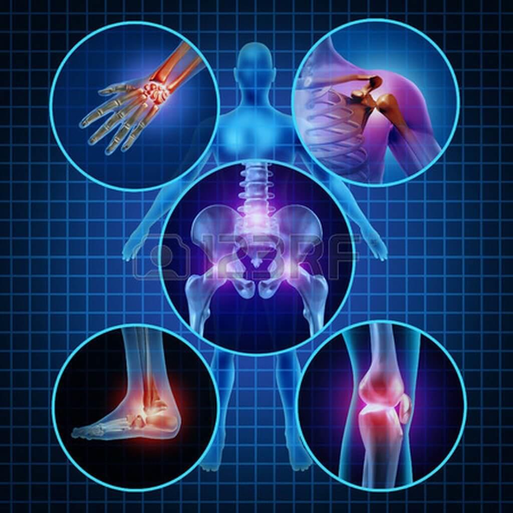 28028298-bóle-stawów-z-anatomii-człowieka-koncepcja-ciała-jako-grupy-okrągłych-paneli-ból-obszarach-ja (Kopiowanie)